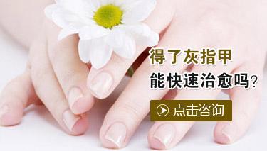 灰指甲的日常护理