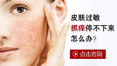 皮肤过敏的原因有哪些
